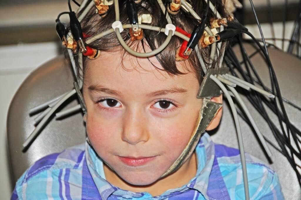 Реоэнцефалография сосудов головного мозга ребенку