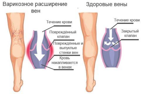 варикоз