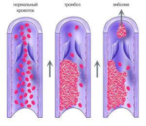 Механизм возникновения тромба