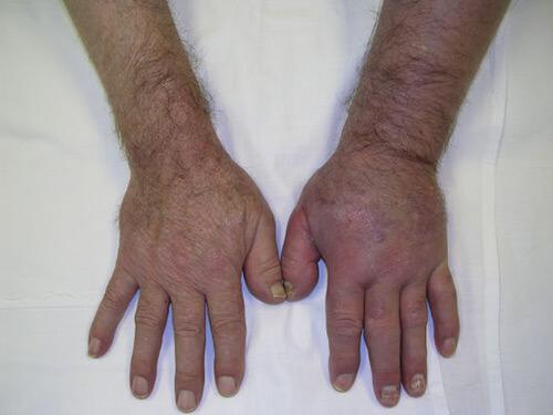 тромбофлебит на руке