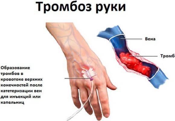 тромбоз после инъекции