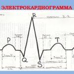 Электрокардиограмма бб