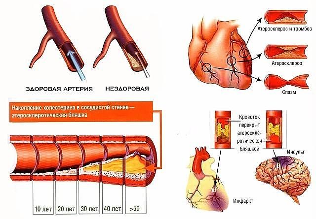 Проблема атеросклероза