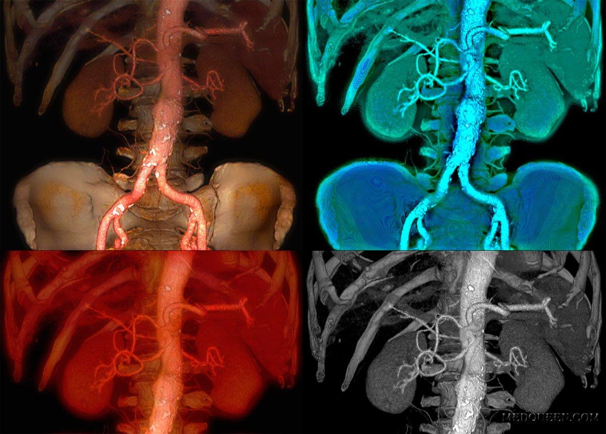 Рентгенконтрастное исследование аорты