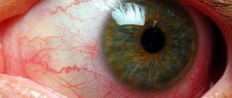Сужение сосудов глазного дна