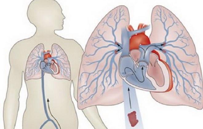 Тромбообразованию легочной артерии