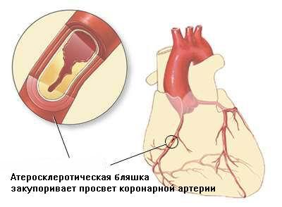 бляшек (отложений холестерина)