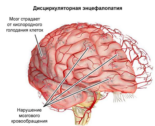 дисциркуляторная энцефалопатия,
