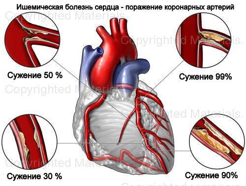 ишемическую болезнь сердца