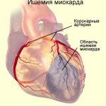 ишемия определенного участка сердца