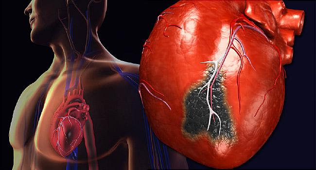 кардиомиоцит