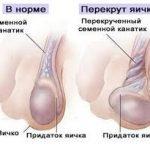 клиническая стадия заболевания