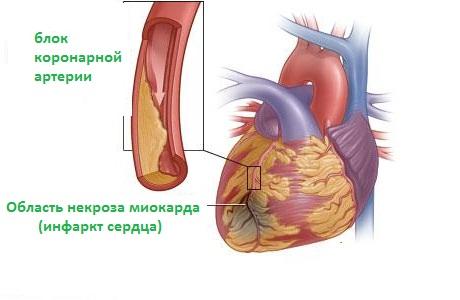 обширный инфаркт задней стенки левого желудочка
