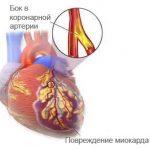 отмирание миоцитов со склерозированием