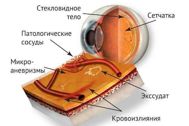 посттромбической ретинопатии