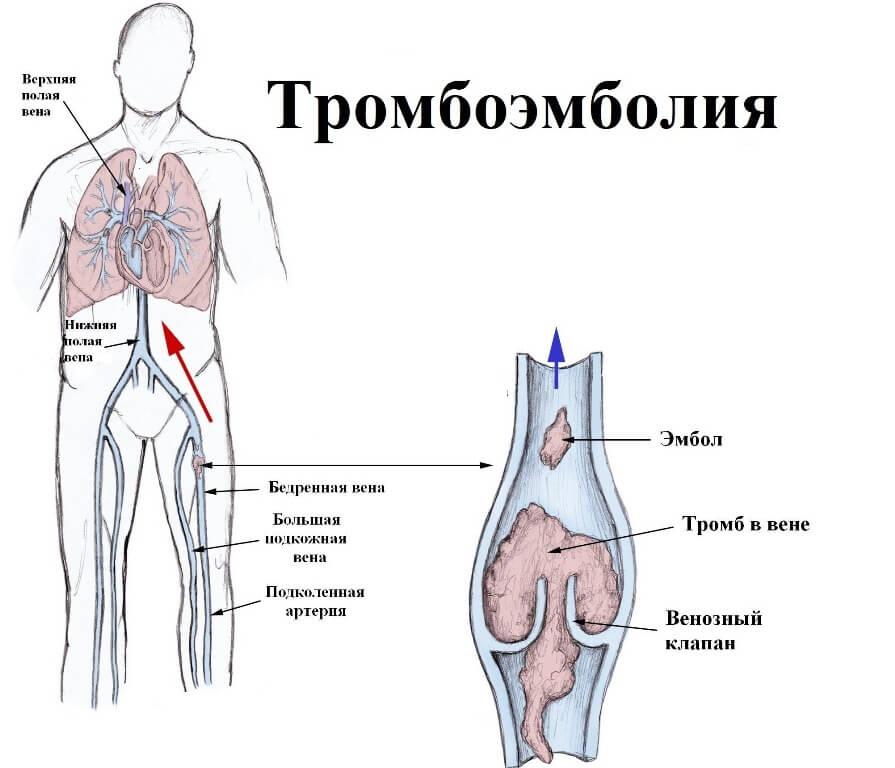 тромбоэмболии нижних конечностей