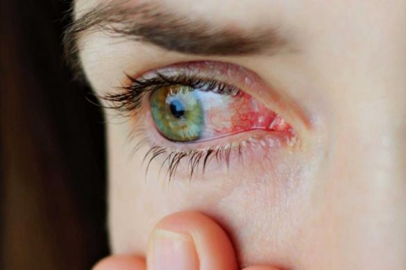 """Сухость глаза"" и симптоматика"