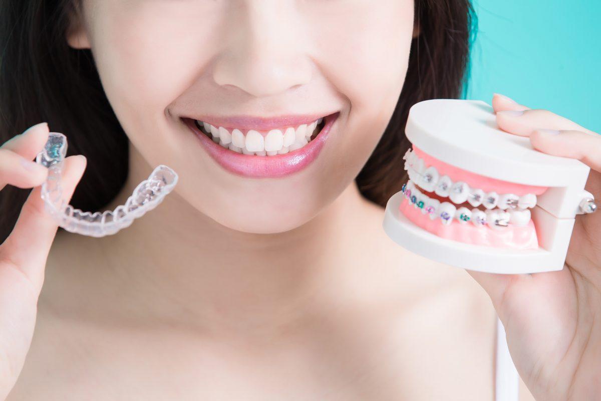 Простые советы, которые помогут вам выбрать лучшего ортодонта